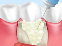 エムドゲイン法(歯周組織再生療法)