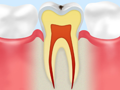 ごく初期の虫歯【CO】