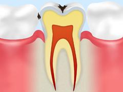 エナメル質の虫歯【C1】
