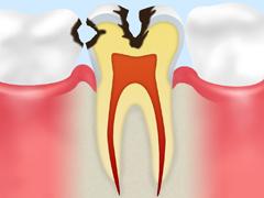 象牙質の虫歯【C2】