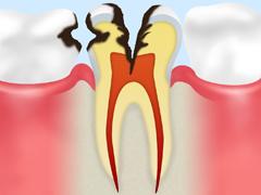 神経に達した虫歯【C3】