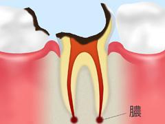 歯根に達した虫歯【C4】